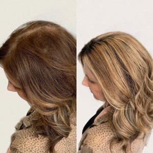 hair-topper-for-thinning-hair-VA-Beach